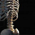 骨粗鬆症や椎体骨折